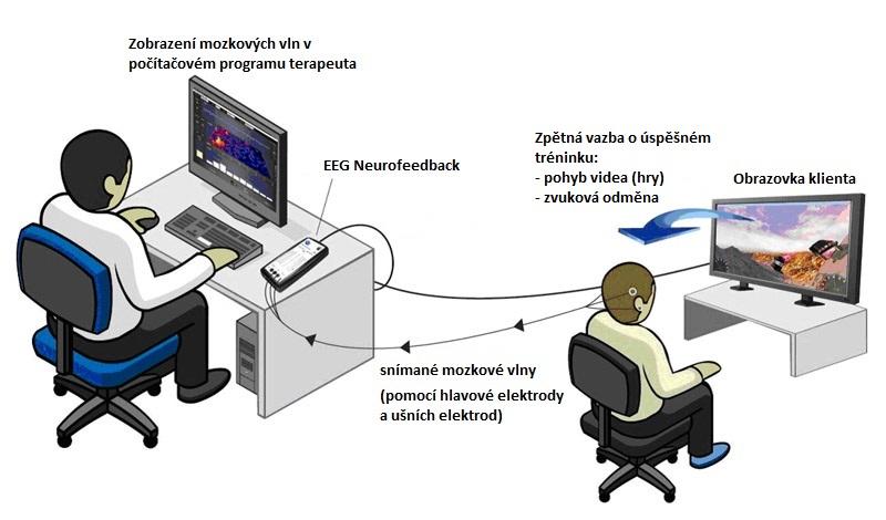 Psychologie, terapie EEG biofeedback alidé vmanažerských pozicích